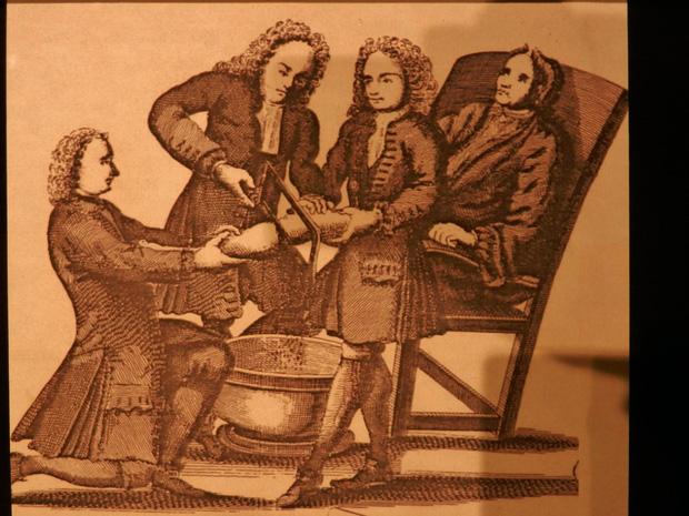 Bác sĩ phẫu thuật tai tiếng nhất thế kỷ 19: Mổ 1 nhưng chết 3, cắt chân nhanh quá xẻo nhầm cả tinh hoàn bệnh nhân - Ảnh 4.