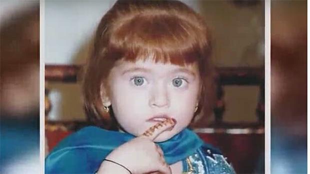 Bé gái sinh ra bị nguyền rủa là quái vật, 20 năm sau dậy thì thành công khiến ai cũng trầm trồ - Ảnh 2.