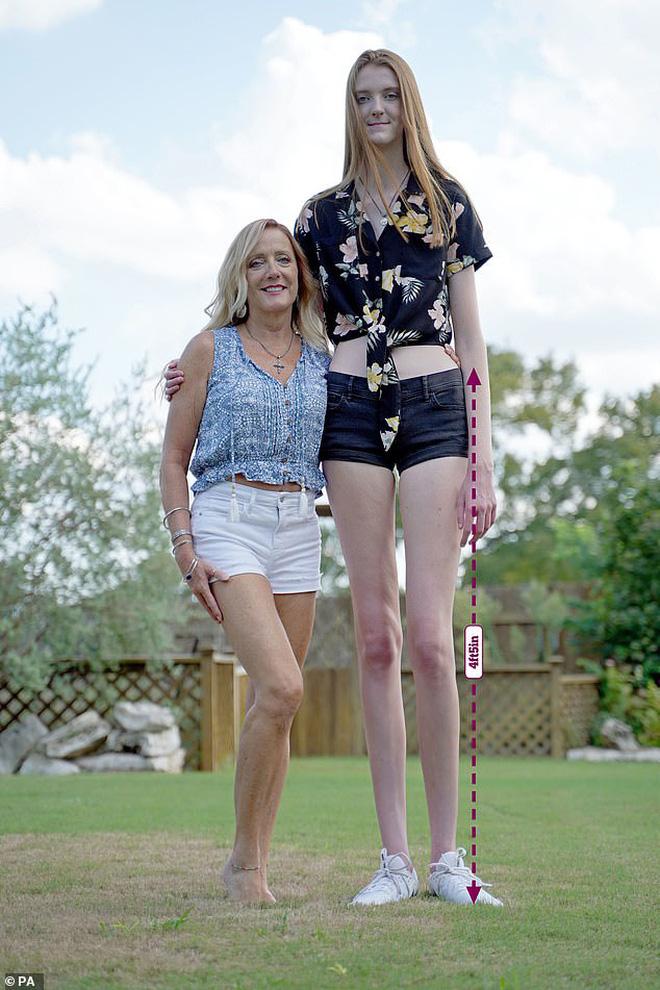 Sở hữu đôi chân dài hơn 1m3, cô bé 17 tuổi khiến ai đứng gần cũng phải e dè vì sợ biến thành chú lùn - Ảnh 2.