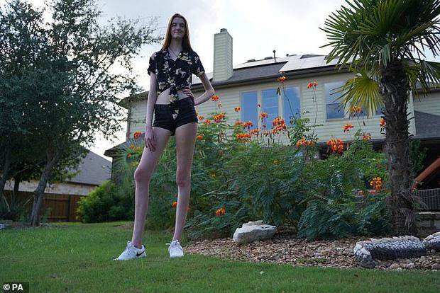 Sở hữu đôi chân dài hơn 1m3, cô bé 17 tuổi khiến ai đứng gần cũng phải e dè vì sợ biến thành chú lùn - Ảnh 4.