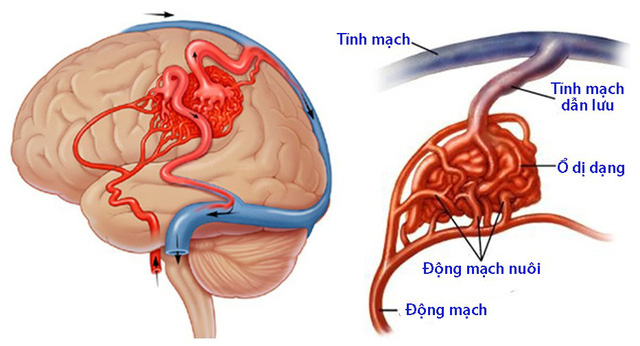 Đột quỵ não không chừa 1 ai: 2/6 thủ phạm gây bệnh là thú vui độc hại của nhiều người Việt - Ảnh 1.