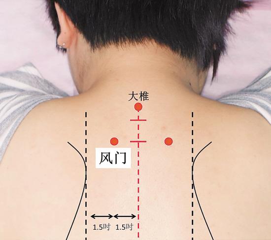 Hai chuyên gia chỉ vài nốt tròn trên tay và lưng để phòng trị bệnh mùa lạnh - Ảnh 6.