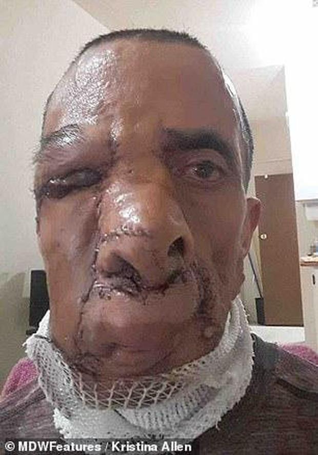 Người đàn ông từng bị người đời gọi là quỷ dữ vì khối u khổng lồ ăn hết cả khuôn mặt giờ đây có cuộc sống như thế nào? - Ảnh 6.