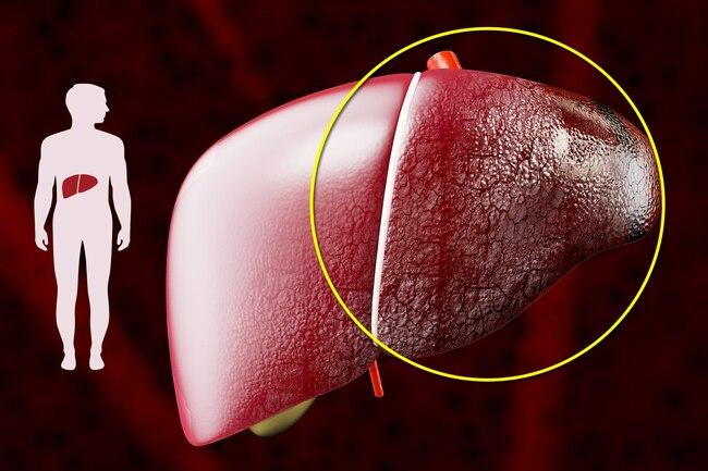 Đừng đùa với xơ gan: Ngoài rượu, còn 5 thủ phạm gây tổn thương gan không hồi phục - Ảnh 2.