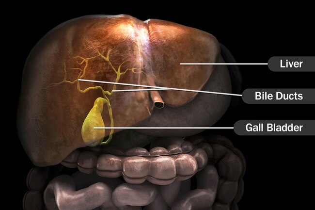 Đừng đùa với xơ gan: Ngoài rượu, còn 5 thủ phạm gây tổn thương gan không hồi phục - Ảnh 9.