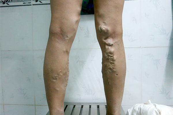 70% nữ giới bị suy giãn tĩnh mạch chân: Chuyên gia Bệnh viện Việt Đức khuyến cáo gì? - Ảnh 4.