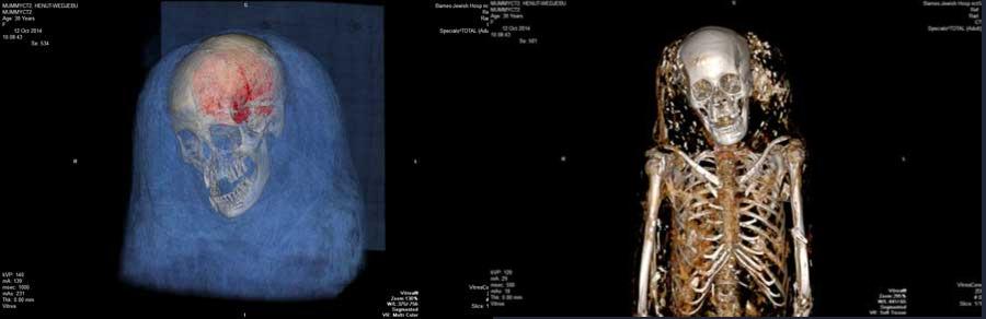 Đưa 3 xác ướp Ai Cập vào máy chụp CT, những bức ảnh bóc trần sự thật giấu kín 3000 năm - Ảnh 5.