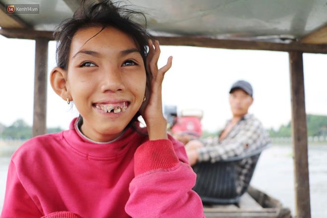 Bé gái bị teo não theo cha đi lượm ve chai ở bờ sông Sài Gòn: Ngồi chờ ba xíu, lát ba quay lại cõng con lên ghe nghen - Ảnh 13.