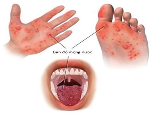 3 dấu hiệu cảnh báo bệnh tay chân miệng ở giai đoạn nặng - Ảnh 1.