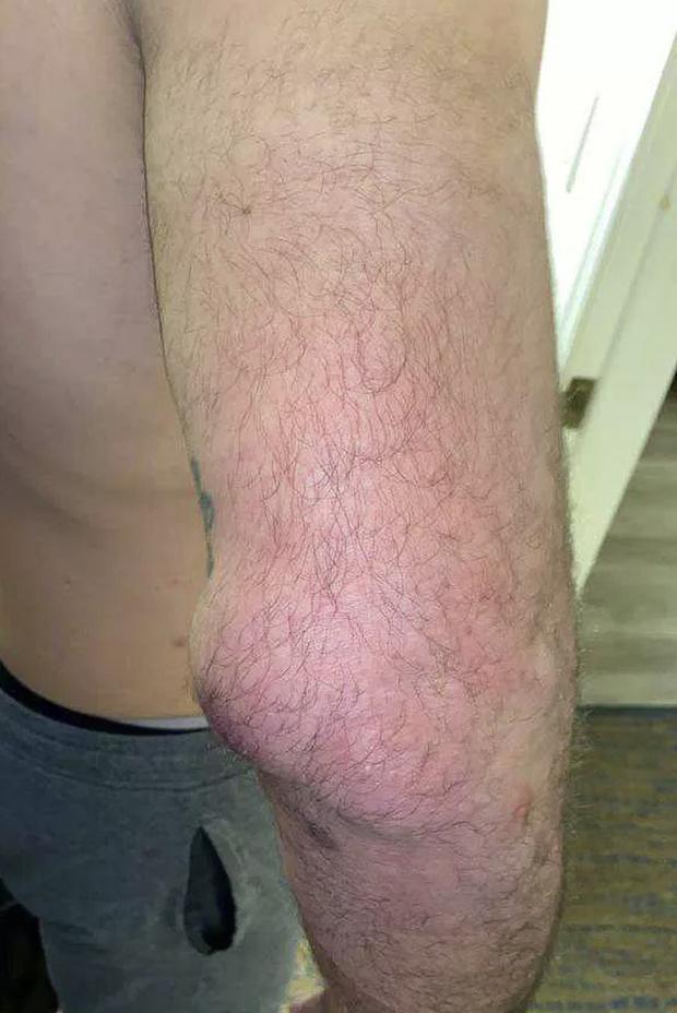 Nhà cựu vô địch MMA bỗng phải nhận trận thua thất vọng, nhiều người trách móc cho đến khi nhìn thấy chấn thương kinh hoàng trên tay anh này - Ảnh 2.