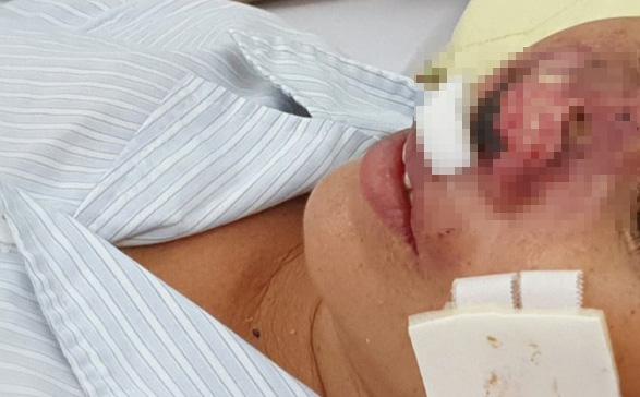 """Quảng Trị: 30 trường hợp mắc bệnh """"vi khuẩn ăn thịt người"""", 4 bệnh nhân tử vong"""