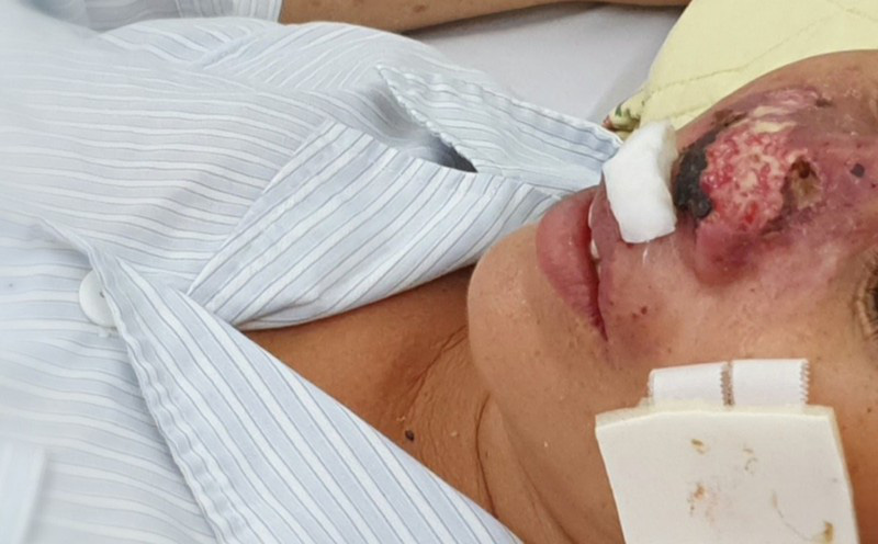 """Đà Nẵng có 28 ca bệnh liên quan đến """"vi khuẩn ăn thịt người"""", 2 bệnh nhân tử vong"""