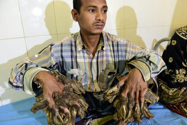 Người Cây - Căn bệnh kỳ quái cực hiếm, tàn phá đến mức người bệnh chỉ muốn chặt tay - Ảnh 3.