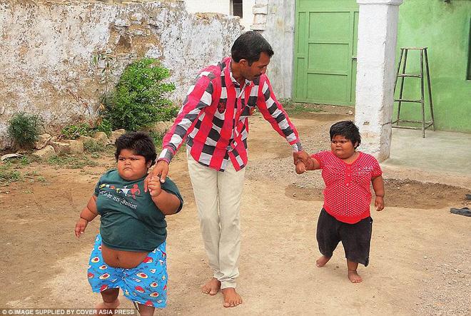 Gia đình nghèo có 3 con bị bệnh béo phì, bố đòi bán thận kiếm tiền cứu chữa từng thu hút sự chú ý của truyền thông thế giới giờ ra sao? - Ảnh 2.