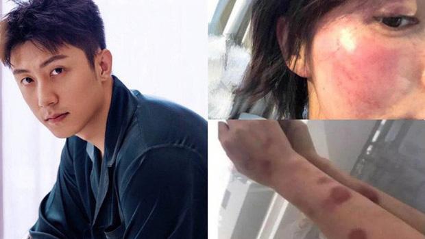 Năm 2020 phủ đen showbiz Hoa ngữ: Anh trai Minh Đạo giết vợ, Triệu Vy - Huỳnh Hiểu Minh ngoại tình và 1001 drama không hồi kết - Ảnh 14.