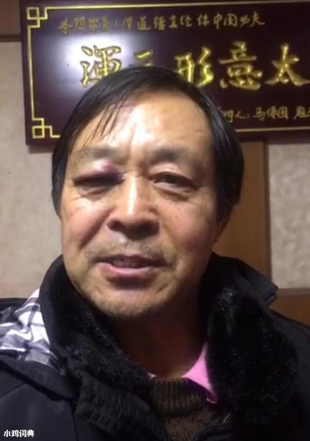 """Hóa ra trận đấu gây chấn động võ lâm Trung Quốc chỉ là """"cú lừa"""" được giật dây? - Ảnh 2."""