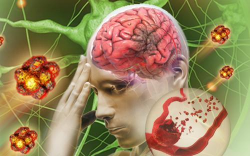 Ai cũng có rủi ro đột quỵ: 8 việc Hội Đột quỵ Hoa Kỳ khuyên, cần làm ngay để giảm nguy cơ - Ảnh 1.