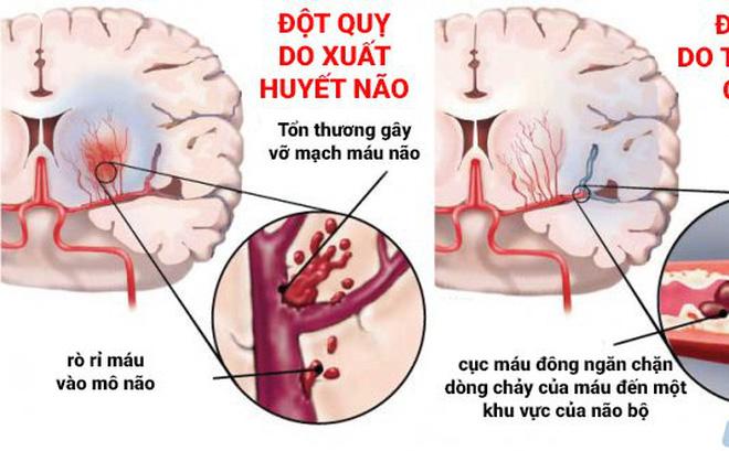 Đột quỵ não ở Việt Nam đang ở mức báo động đỏ: Chuyên gia gửi 5 câu hỏi để người trẻ kiểm tra lối sống - Ảnh 1.