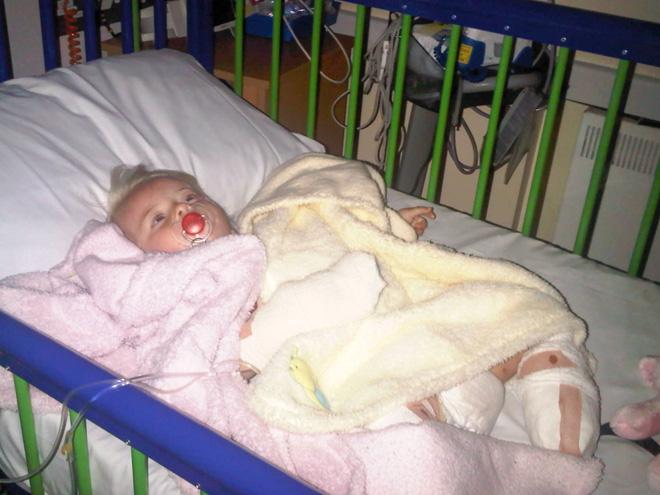 Bé gái sinh ra với đôi chân chỉ dài 5cm, 18 tháng tuổi đã phải cưa cụt chân để giữ mạng sống 10 năm trước gây ngỡ ngàng với cuộc sống hiện tại - Ảnh 3.