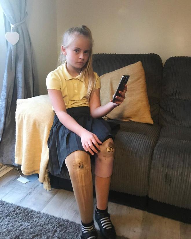 Bé gái sinh ra với đôi chân chỉ dài 5cm, 18 tháng tuổi đã phải cưa cụt chân để giữ mạng sống 10 năm trước gây ngỡ ngàng với cuộc sống hiện tại - Ảnh 8.