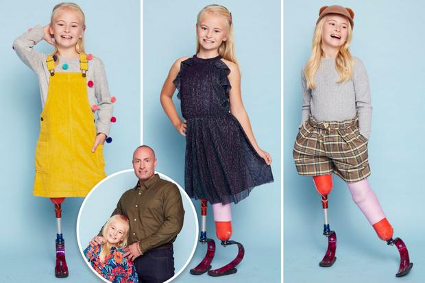 Bé gái sinh ra với đôi chân chỉ dài 5cm, 18 tháng tuổi đã phải cưa cụt chân để giữ mạng sống 10 năm trước gây ngỡ ngàng với cuộc sống hiện tại - Ảnh 9.