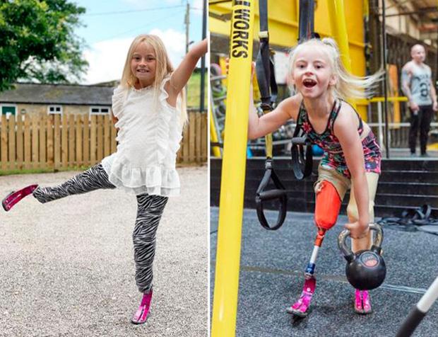 Bé gái sinh ra với đôi chân chỉ dài 5cm, 18 tháng tuổi đã phải cưa cụt chân để giữ mạng sống 10 năm trước gây ngỡ ngàng với cuộc sống hiện tại - Ảnh 13.