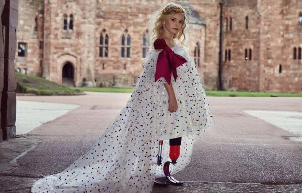 Bé gái sinh ra với đôi chân chỉ dài 5cm, 18 tháng tuổi đã phải cưa cụt chân để giữ mạng sống 10 năm trước gây ngỡ ngàng với cuộc sống hiện tại - Ảnh 14.