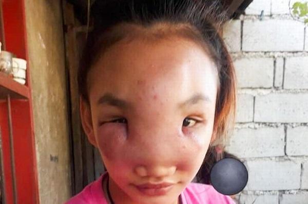 Nặn mụn trên mũi, cô gái 17 tuổi bất ngờ mắc bệnh lạ suốt 1 năm chưa khỏi - Ảnh 1.
