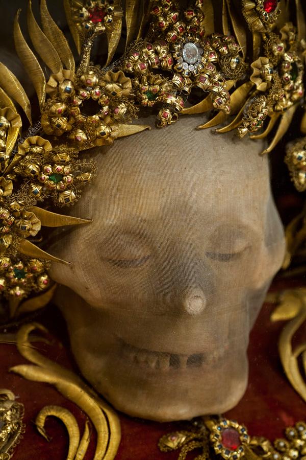 Bí ẩn về những bộ xương nạm châu báu - Ảnh 3.