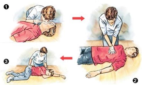 Sơ cứu đuối nước chậm 4 phút có thể chết não: Những điều ai cũng phải biết phòng khi cần - Ảnh 2.