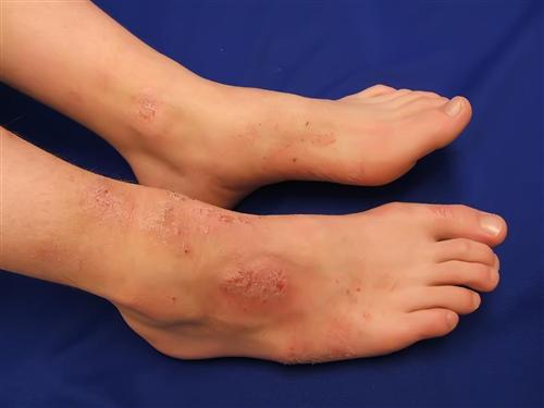 10 nguyên nhân gây ngứa chân và cách điều trị - Ảnh 1.