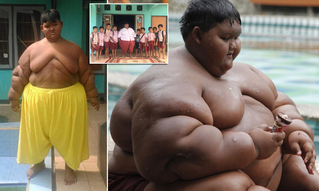 Hành trình giảm cân ngoạn mục của cậu bé béo nhất thế giới nặng gần 200kg khi mới 10 tuổi nhưng để lại cơ thể bị chảy xệ gây ám ảnh - Ảnh 2.