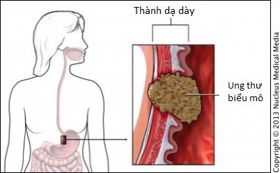 Ai có nguy cơ bị ung thư dạ dày: Nếu có một trong những yếu tố sau, cần cẩn thận! - Ảnh 3.