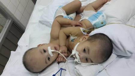 Những ca phẫu thuật tách rời song sinh đình đám của Việt Nam - Ảnh 3.