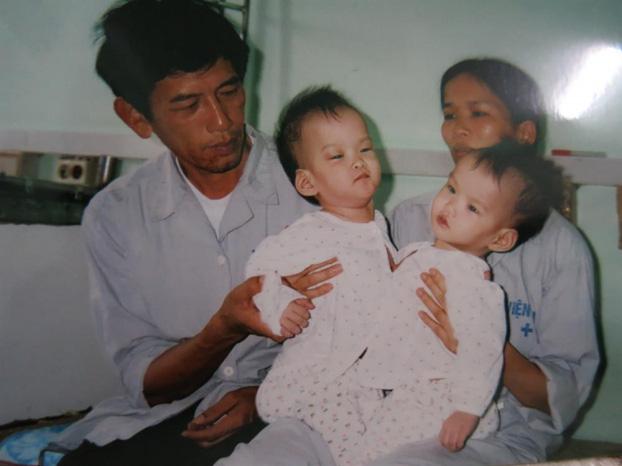 Những ca phẫu thuật tách rời song sinh đình đám của Việt Nam - Ảnh 4.