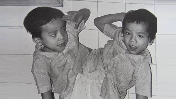 Những ca phẫu thuật tách rời song sinh đình đám của Việt Nam - Ảnh 6.