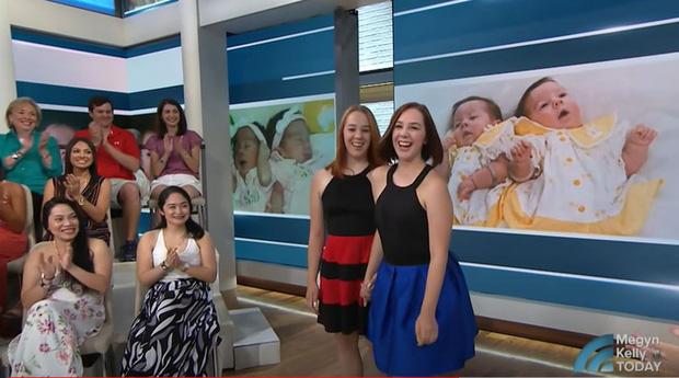 2 con gái sinh đôi dính liền, cha mẹ mất 7 tháng mới quyết định tách rời con, 17 năm sau ai cũng mãn nguyện khi thấy nụ cười của các em - Ảnh 10.