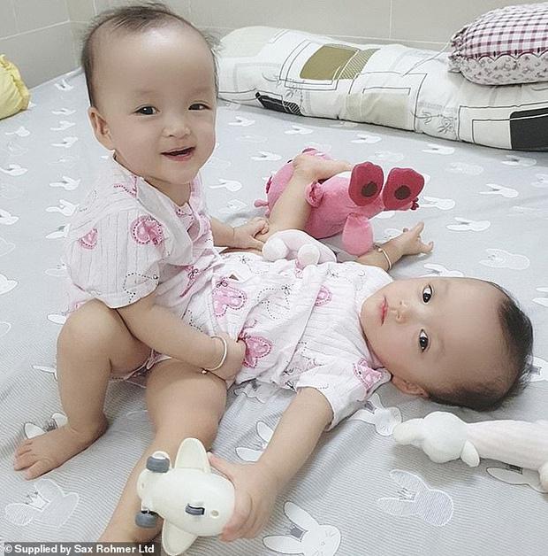 Ca phẫu thuật tách rời thành công cặp song sinh Trúc Nhi - Diệu Nhi của các y bác sĩ Việt Nam thu hút sự chú ý báo chí nước ngoài - Ảnh 1.