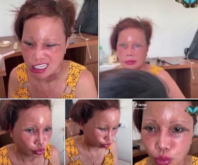 Cô dâu 63 tuổi ở Cao Bằng lại tiếp tục lộ diện khuôn mặt biến dạng, sưng phù không thể nhận ra - ảnh 1