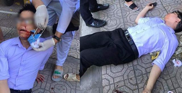 Vụ vợ chủ tịch phường ở Thái Bình đánh cán bộ tư pháp: Liên tục có người lạ gọi điện, tìm đến tận nhà trọ - Ảnh 2.