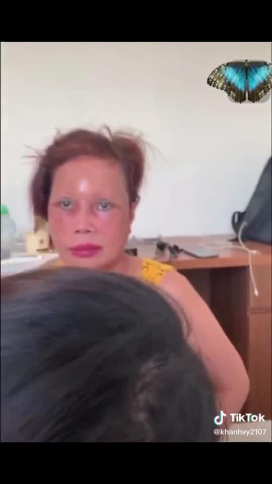 Cô dâu 63 tuổi ở Cao Bằng lại tiếp tục lộ diện khuôn mặt biến dạng, sưng phù không thể nhận ra - ảnh 3