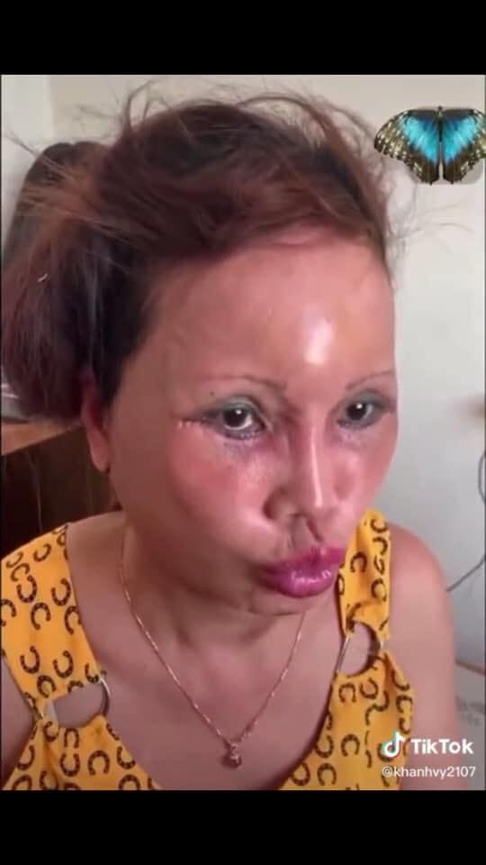 Cô dâu 63 tuổi ở Cao Bằng lại tiếp tục lộ diện khuôn mặt biến dạng, sưng phù không thể nhận ra - ảnh 4