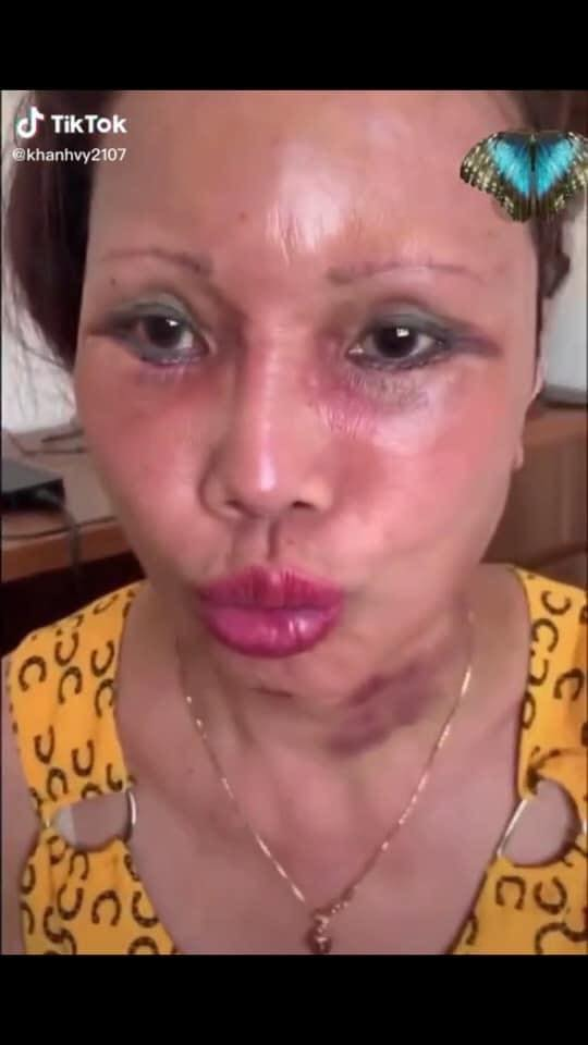 Cô dâu 63 tuổi ở Cao Bằng lại tiếp tục lộ diện khuôn mặt biến dạng, sưng phù không thể nhận ra - ảnh 5