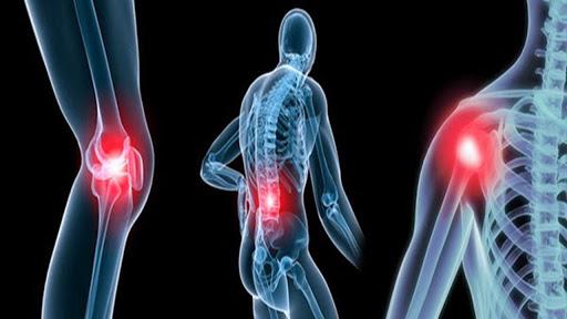 GS xương khớp: Sát thủ gây tàn tật số 1 - Đừng bỏ qua các dấu hiệu khi khớp kêu cứu - Ảnh 2.