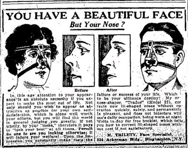 Cận cảnh những phương pháp làm đẹp từ 100 năm trước của chị em phụ nữ, nhiều cái trông không khác gì trong phim kinh dị - Ảnh 15.