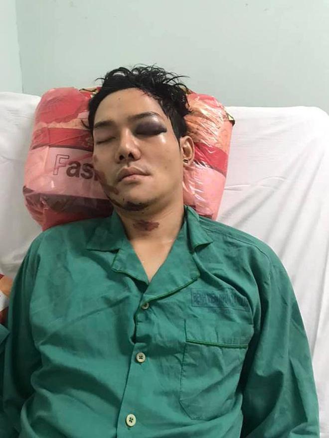 Cuộc sống của con trai nuôi Hoài Linh sau tai nạn gây chấn thương sọ não, gãy xương hàm - Ảnh 1.