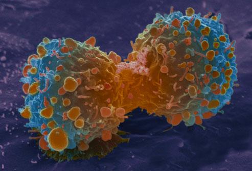 WebMD chỉ mặt thủ phạm gây ra 9/10 ca tử vong do ung thư phổi: Cần từ bỏ và tránh xa! - Ảnh 6.