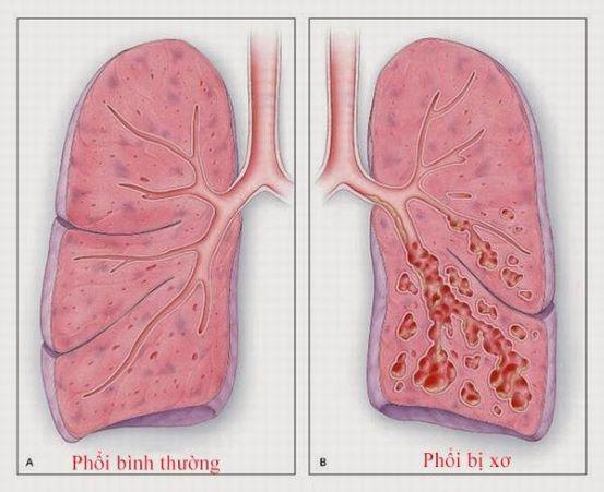 Cảnh báo xơ phổi – di chứng của COVID-19 - Ảnh 1.