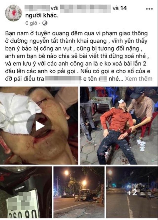 CSGT ở Vĩnh Phúc bị tố dùng dùi cui vụt vỡ mũi người vi phạm giao thông - Ảnh 1.