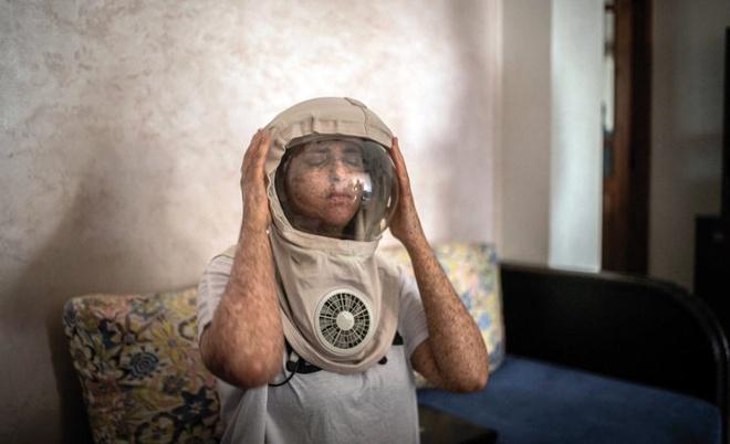 Cô gái dị ứng ánh Mặt Trời, 20 năm ra ngoài phải đội mũ phi hành gia - Ảnh 1.